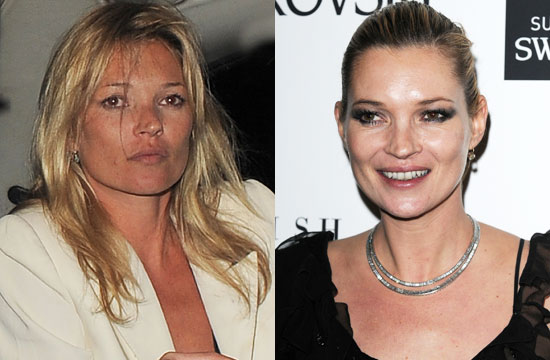 Do You Think Kate Moss Looks Better With or Without a Tan? 2010-01-21 02:03:10