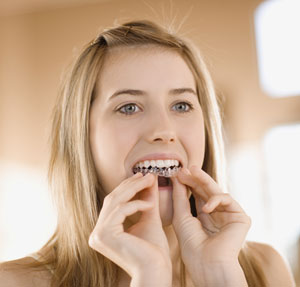 Teeth Whitening Most Popular Cosmetic Treatment