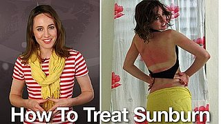 BTV How To Treat Sunburn - Replacement Video