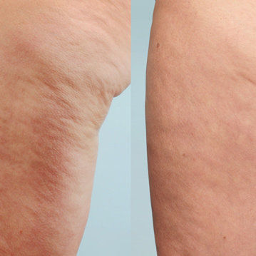 Cellulaze One-Time Cellulite Treatment Is FDA-Approved