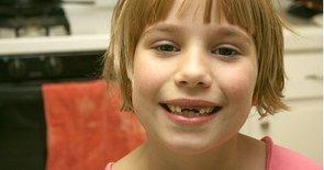 5 Winning Tips for Losing Teeth