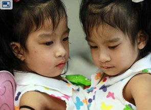 Conjoined Twins Sucessfuly Separated After Marathon Surgery (PHOTO)