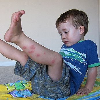 Home Remedies For Bug Bites and Stings