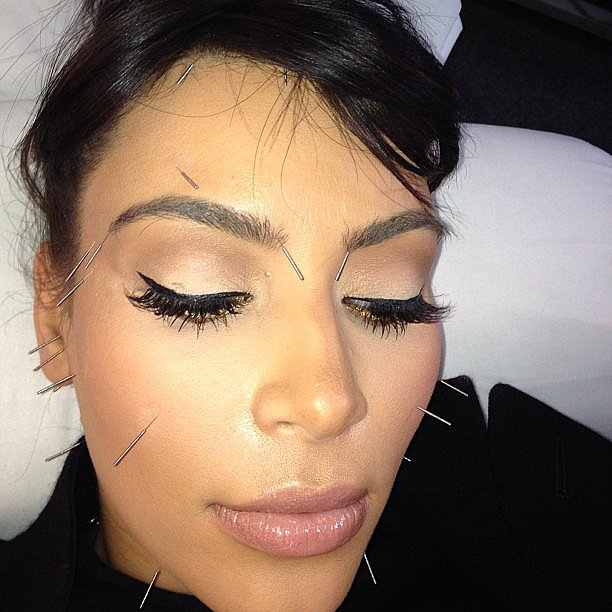 Kim Kardashian got acupuncture in her face. Source: Instagram user kimkardashian
