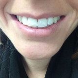 Oral-B 3D White Teething Whitening Review Part 2