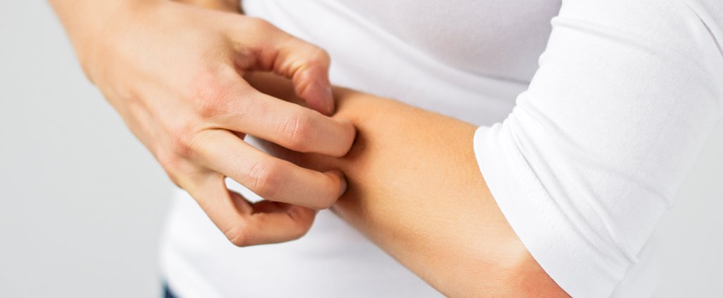 Eczema or Psoriasis? How to Be Sure You're Treating the Right Condition