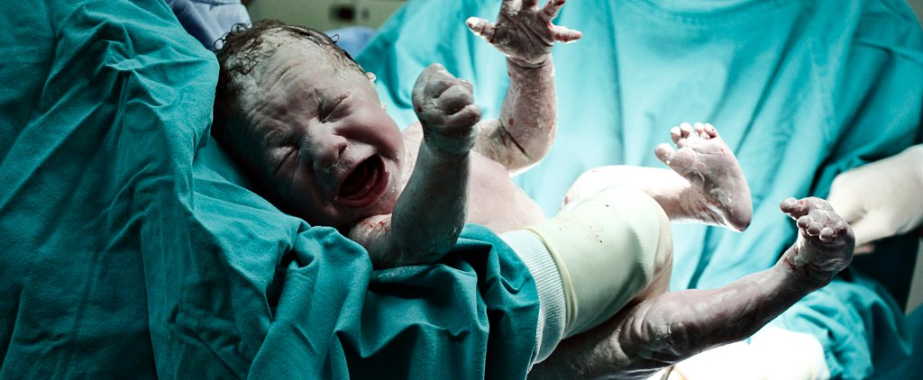 10 Things to Expect Should You Have a C-Section