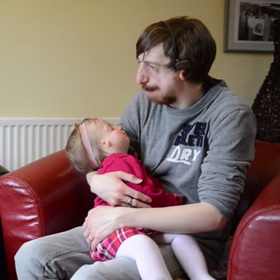 Family Has Baby With Treacher Collins Syndrome