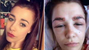 This Girl's Allergic Reaction Will Make You Think Twice About Eyebrow Tinting