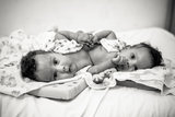 A Photographer Captured Conjoined Twins Like You've Never Seen Them Before