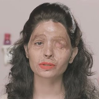 Acid Attack Victim Beauty Tutorial