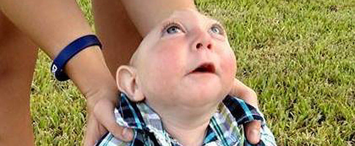 This Baby Boy Born Without Most of His Skull Miraculously Celebrates His First Birthday