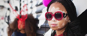 "10-Year-Old Model With Vitiligo Wears Her ""Love Spots"" With Pride"