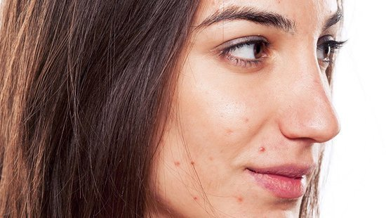 From Your Chin To Your Cheeks, Find Out Why You Get Pimples On Different Parts Of Your Face