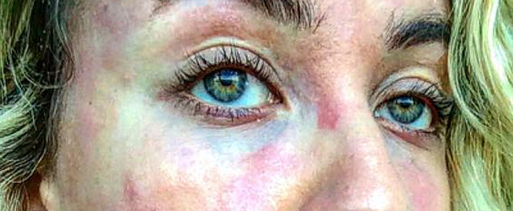 This Photo Will Change the Way You Think About Psoriasis