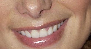Can You Guess Which Celebrities' Dimples These Are?