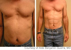 Six-Pack Surgery?