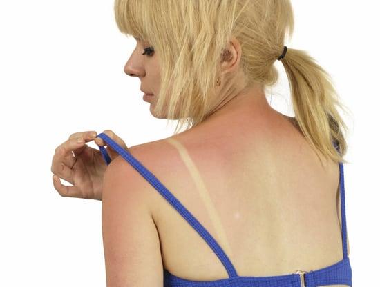 Why Sunburn Causes Skin Cancer