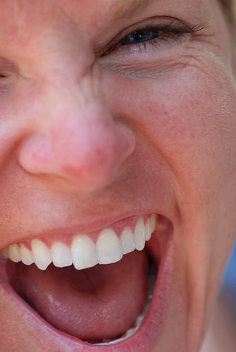 Why It's OK to Be Lazy With Your Teeth (Just This Once)
