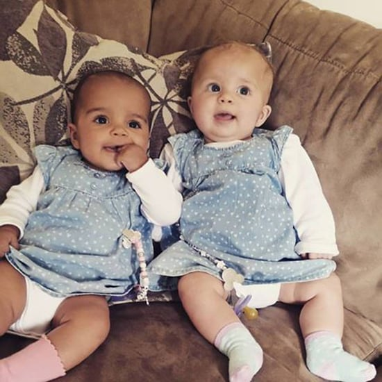 Twin Born With Different Skin Tones