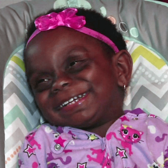 Internet Making Fun of Baby With Rare Disease
