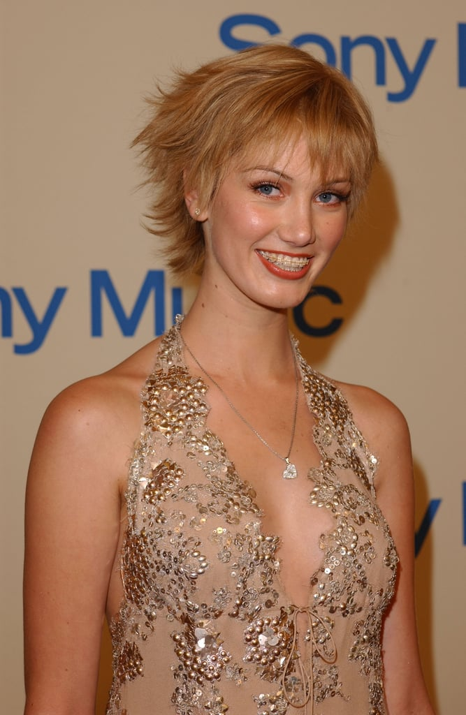 Delta sported braces at a post-Grammys party in Feb. 2004.