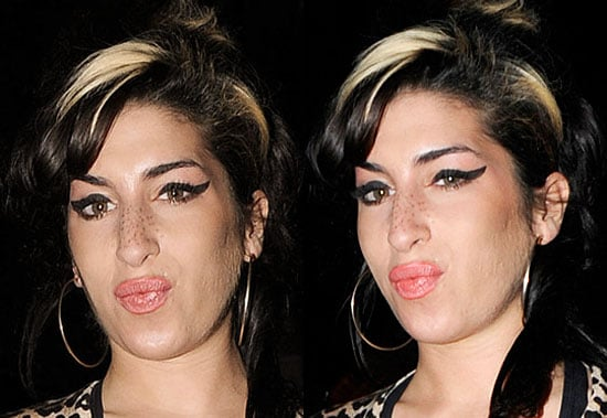 Amy Winehouse Lips, Amy Winehouse Plastic Surgery, Amy Winehouse Boobs