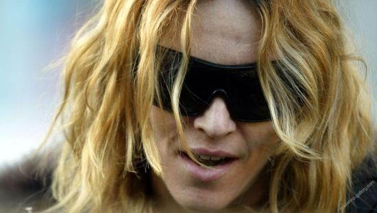 Paps Give Madonna a Shiner