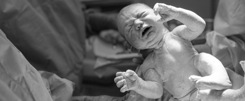 These Beautiful C-Section Birth Photos Are Nothing Short of Amazing