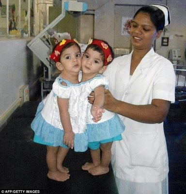 Abandoned Conjoined Twins Successfully Separated