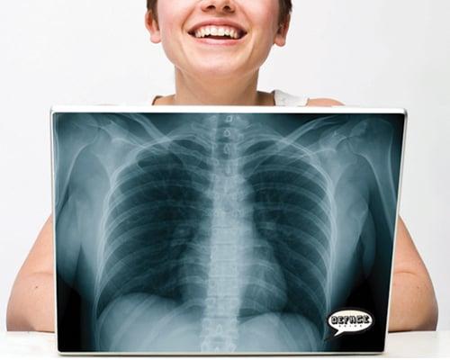 X-Ray Laptop Skin
