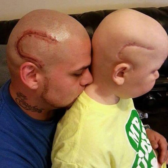 Dad Gets Tattoo on His Head of Son's Cancer Scar