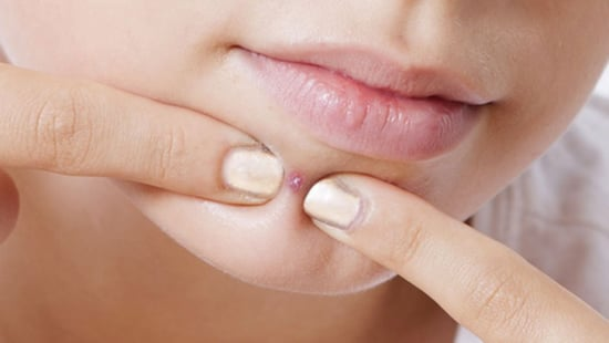 5 Remedies For Chin Acne That The Experts Swear By
