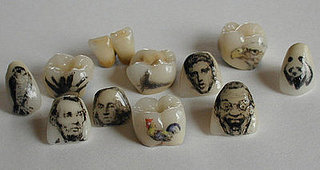 Would You Tattoo Your Teeth?