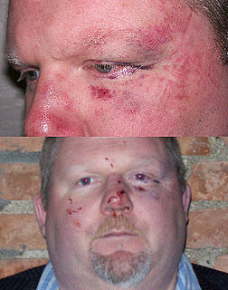 Food Critic Assaulted Outside Restaurant