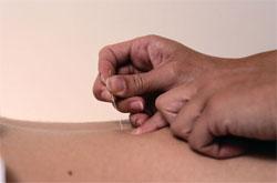 Five Alternative Treatments That Work