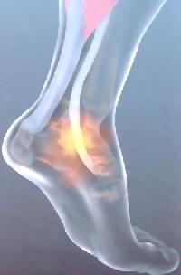 Feet Hurt On Elliptical