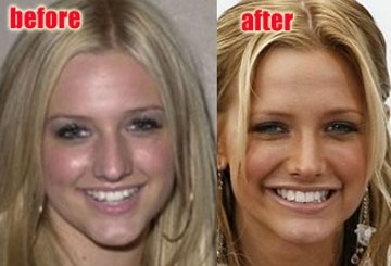 Ashlee Simpson..> More surgery?