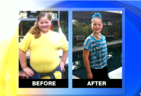 9-Year-Old Loses 66 Pounds