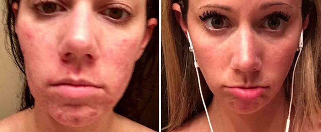 You Have to See How the Pill Made This Woman's Acne Disappear