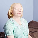 Albinism Photographs