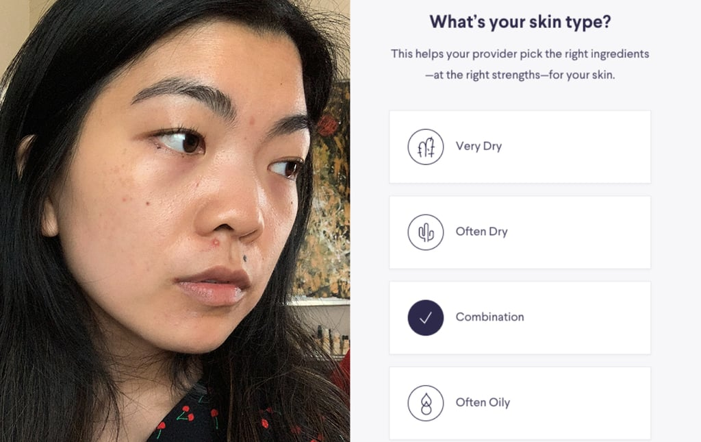 How Does the Skin-Care App Curology Work? We Tried It