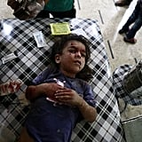 A child is treated after an airstrike in Douma, just outside the capital.