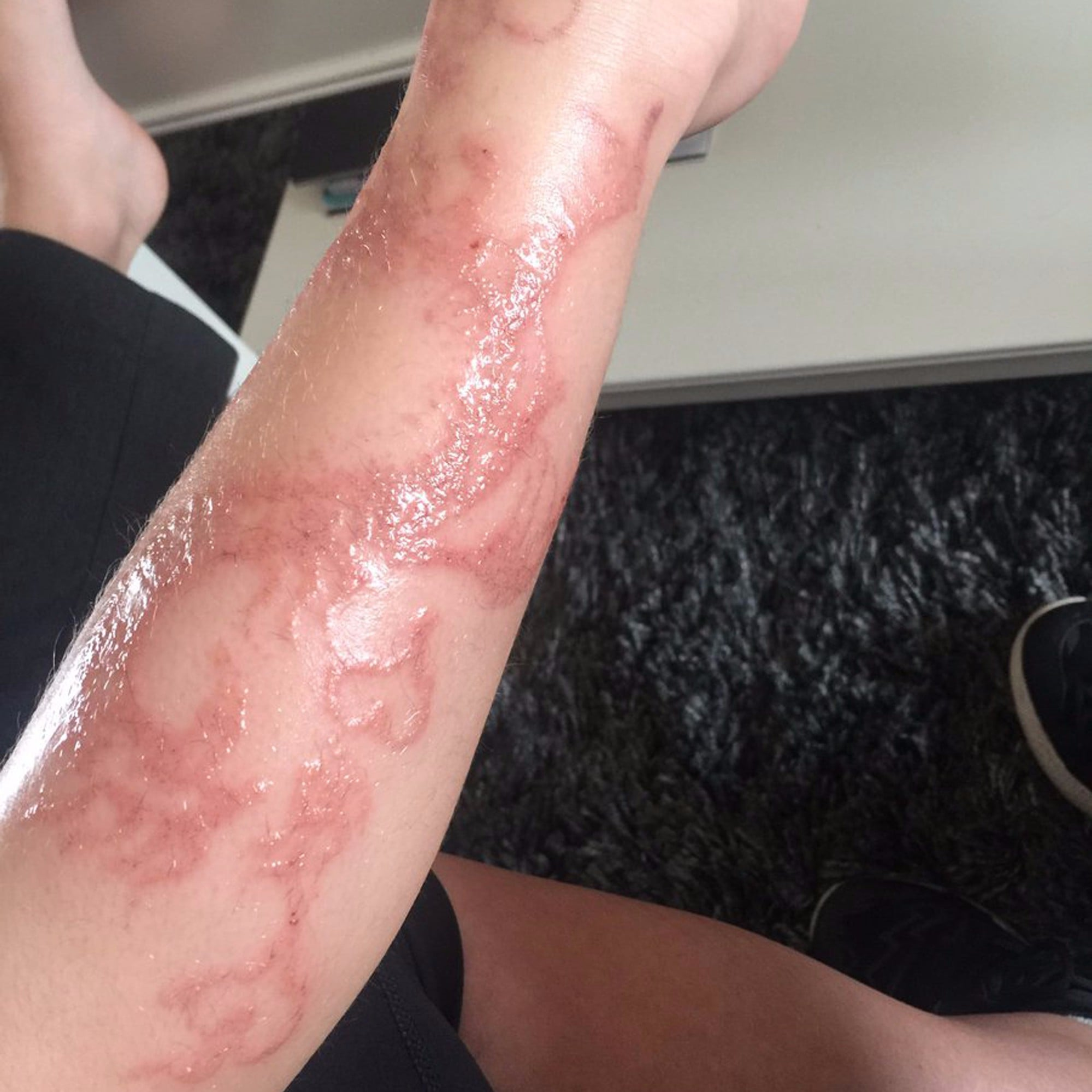 Kid S Allergic Reaction To Henna Tattoo Popsugar Family
