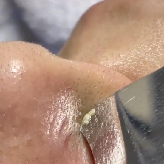 Best Pimple and Blackhead Extraction Videos on TikTok