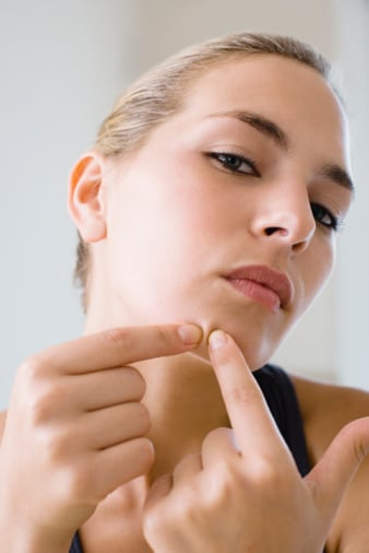 The Truth About Blackheads, Spots, Blemishes and Adult Acne. How to Prevent and Get Rid of Blackheads. Beauty Glossary Blog