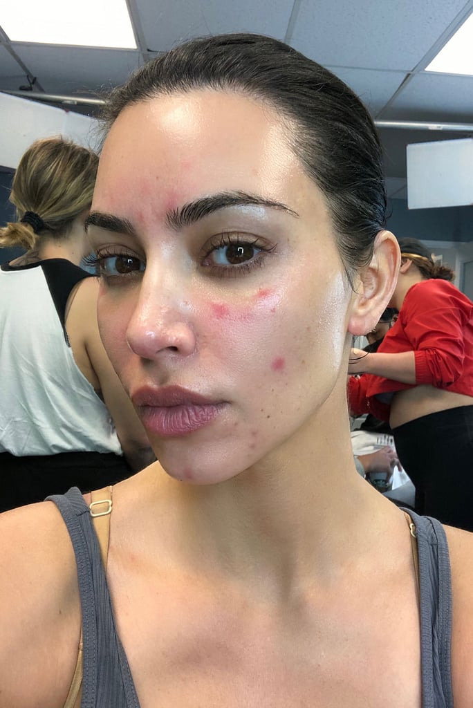 Kim Kardashian Talks About Her Psoriasis With Photos