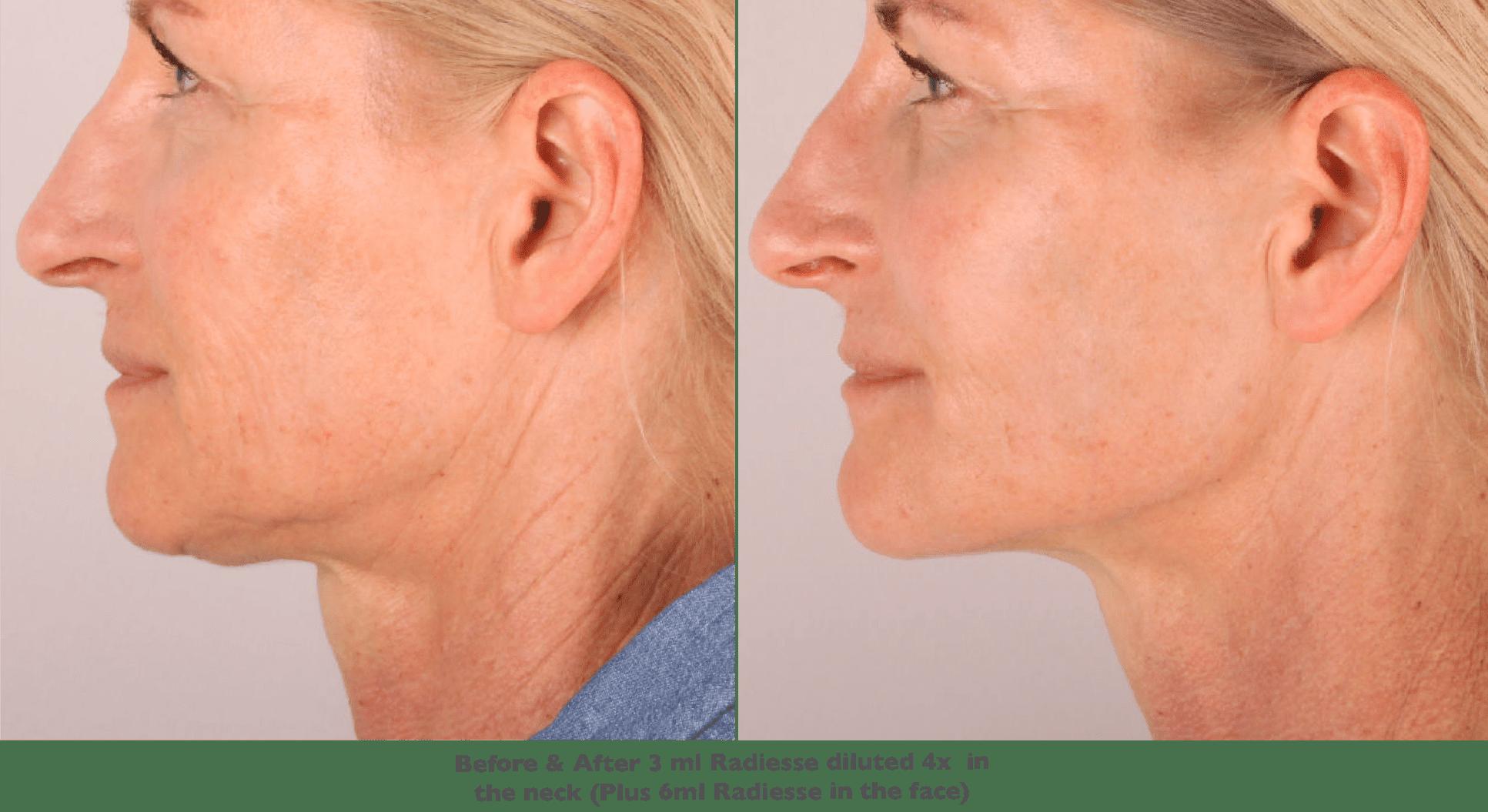 Neck Washing: A Guide to the Neck Rejuvenation Treatment | POPSUGAR Beauty UK