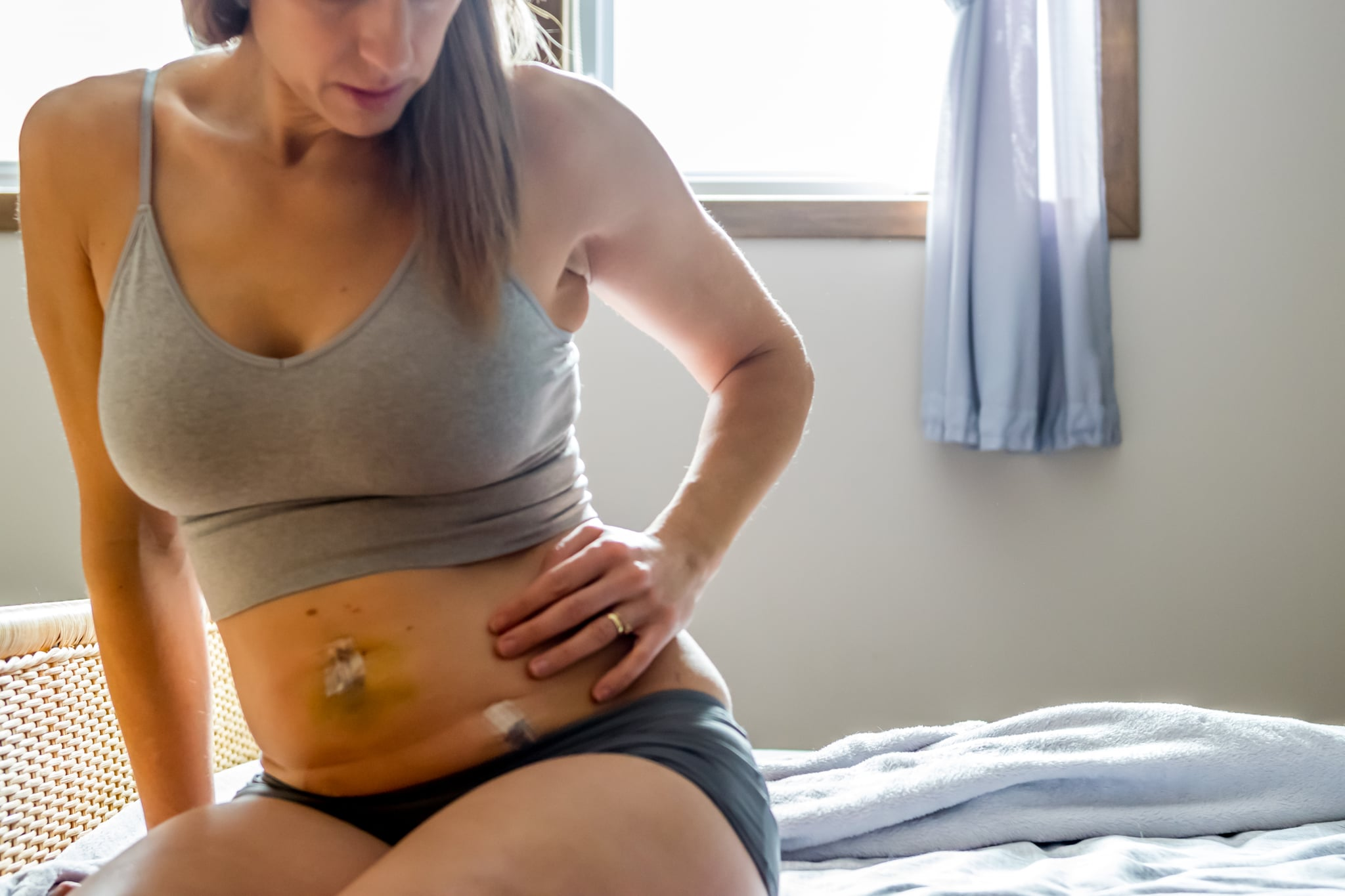 Woman resting after fallopian tube removal surgery to prevent ovarian cancer.