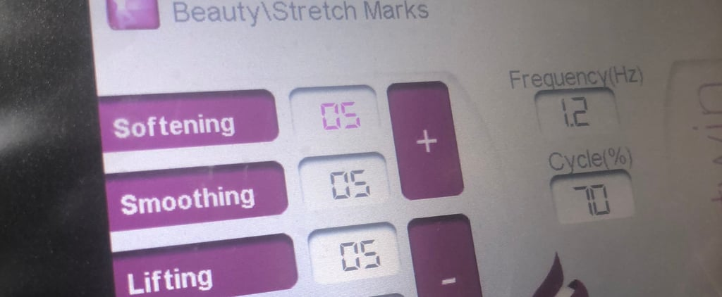 Starvac Stretch Marks Reduction Review